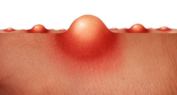 Hautpflege – Hautunreinheiten erfolgreich und ohne Chemie behandeln